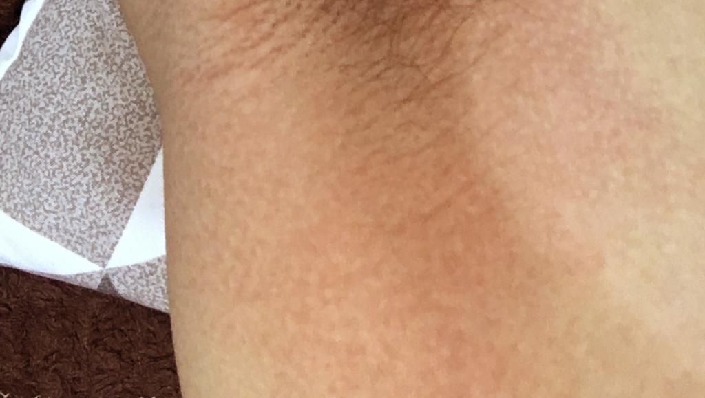 glutamax deodorant reaction